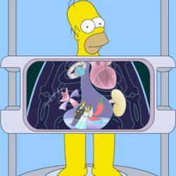 Radiografia Homer